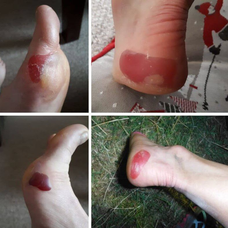 edge blisters