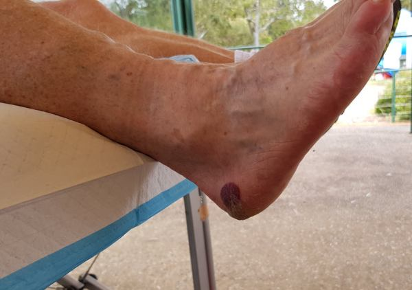 Heel edge blister (with blood) under callous