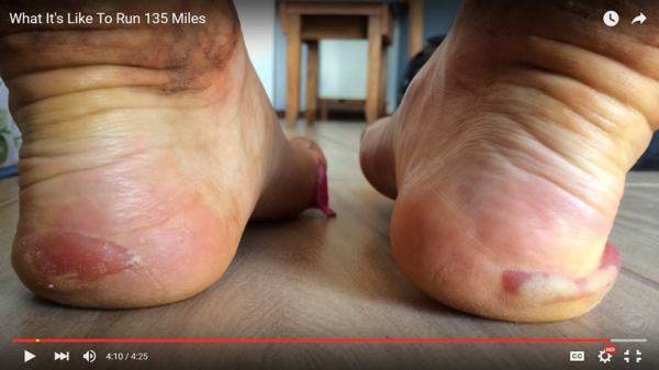 Awful lateral heel edge blisters containing blood
