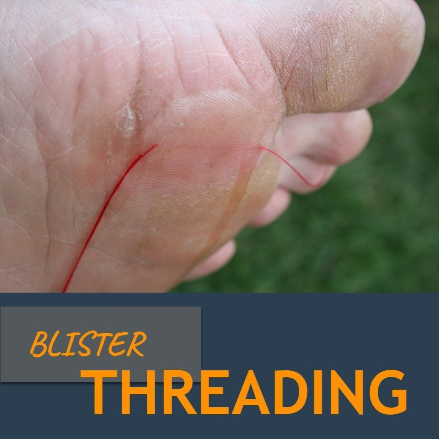 blister threading to drain a blister