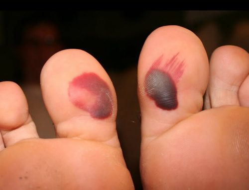 Blood Blister On Foot – Do's and Don'ts