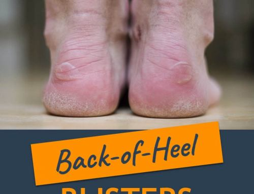 6 Popular Ways To Prevent A Back-of-Heel Blister