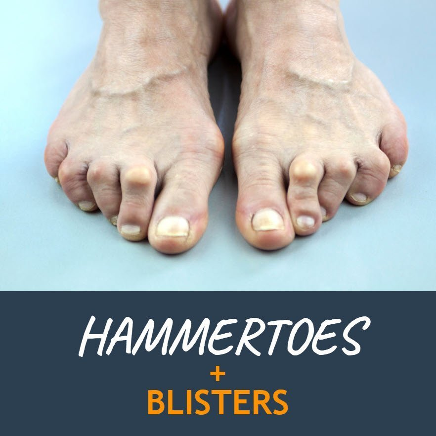hammertoes and blisters