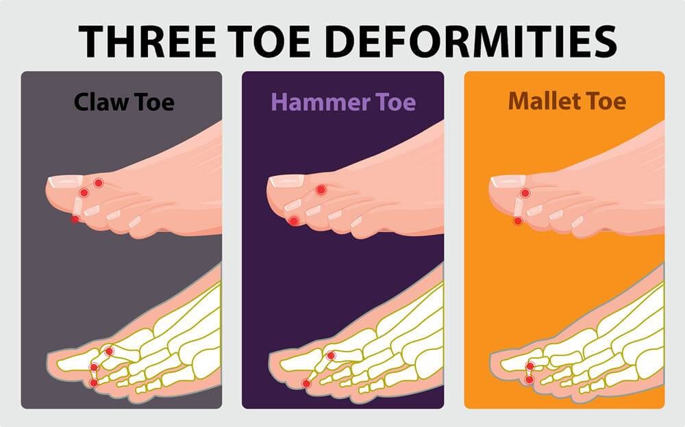 Hammertoes, claw toes and mallet toes