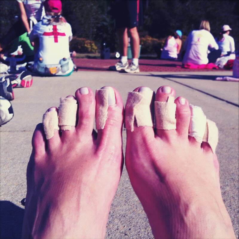hammertoes and claw toes rubbing - one way to protect them