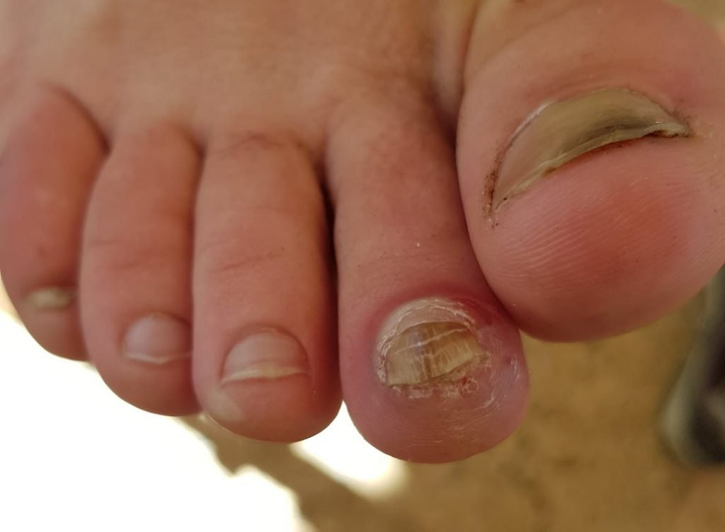 Thick toenail leading to blister
