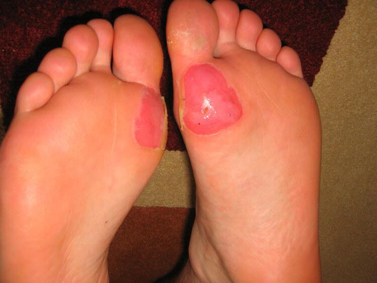 ball of foot deroofed blisters