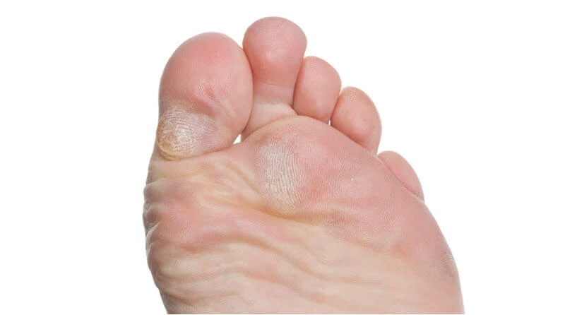 do callouses stop blisters