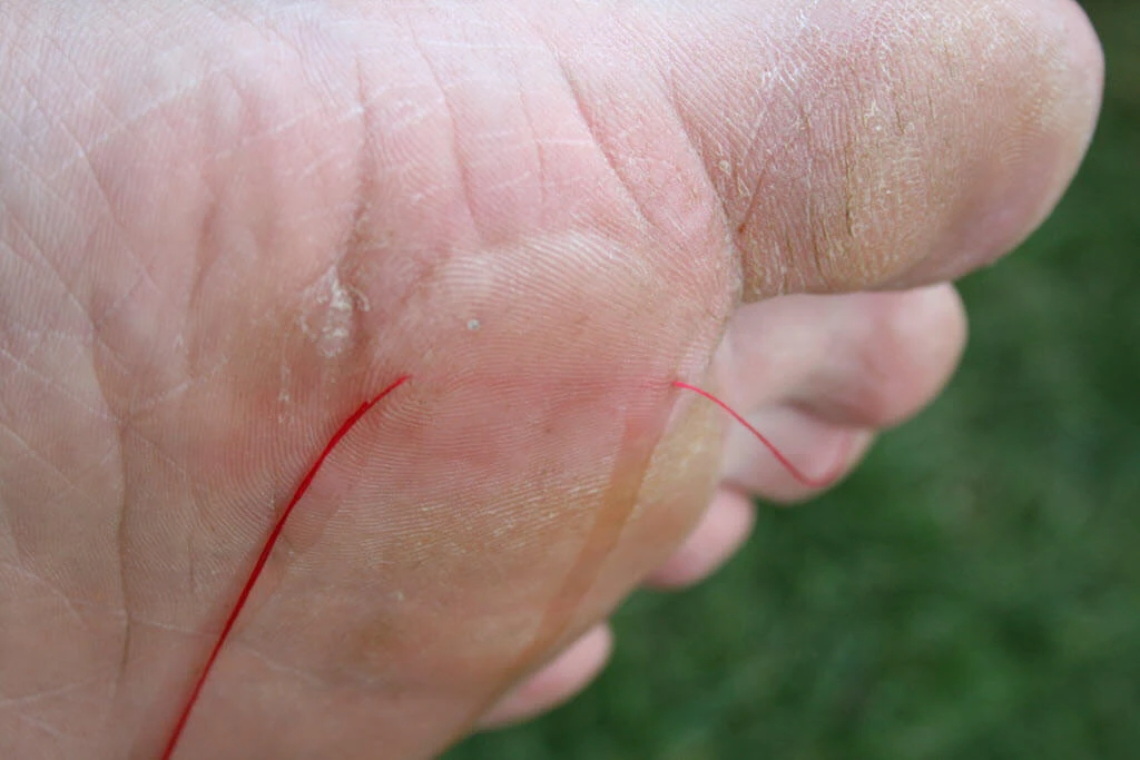 cotton thread passed through a blister - blister threading