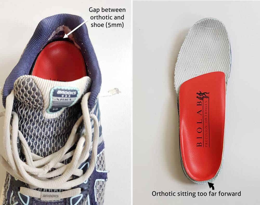gap between orthotic and shoe