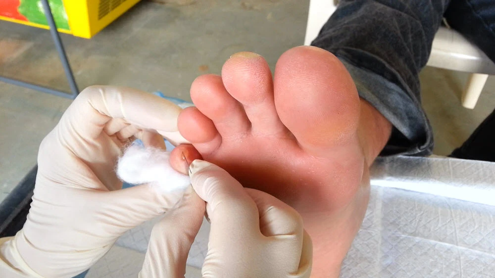 Normal healthy uninfected blister