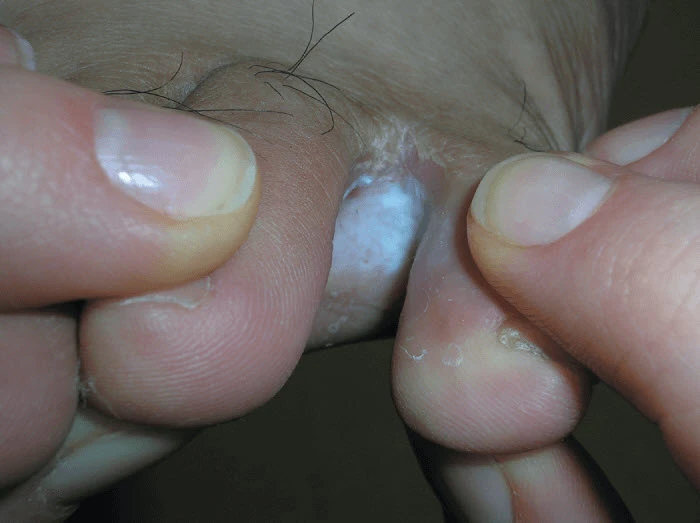 Interdigital tinea pedis can look like small itchy foot blisters