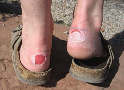 Wearing open-backed scuffs with take pressure off a foot blister