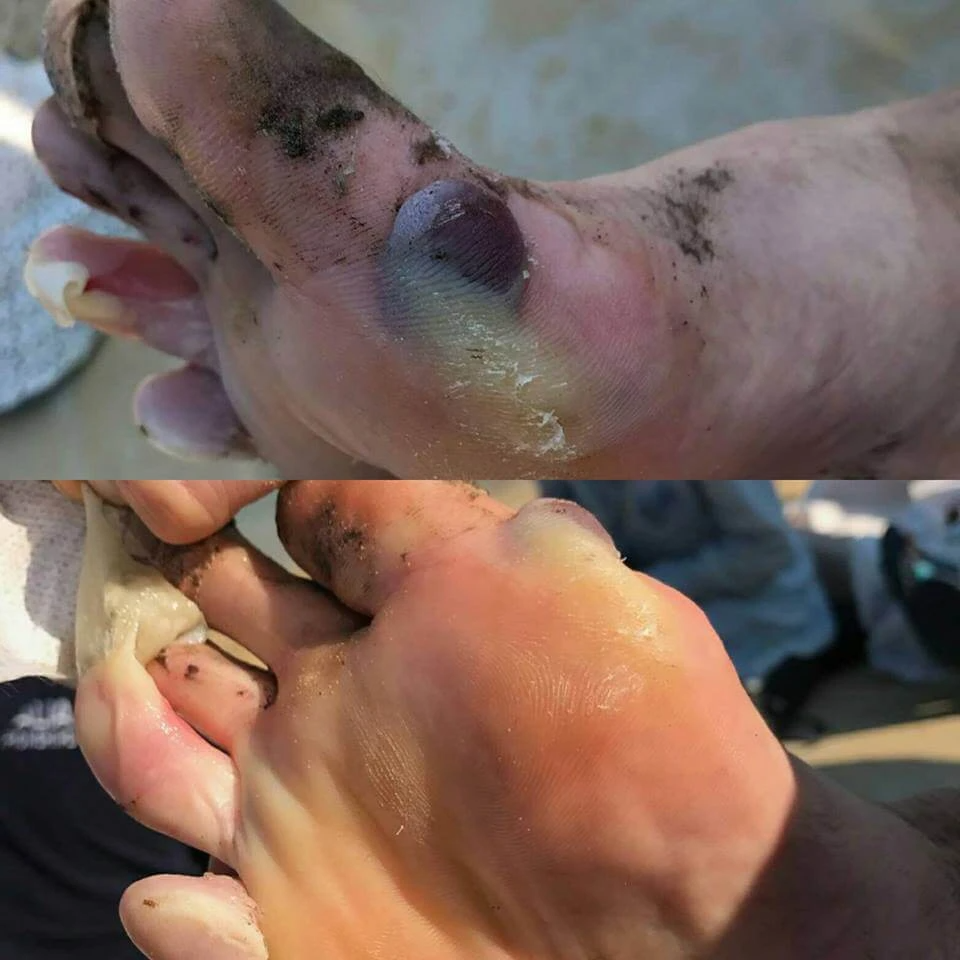 worst blister on the toes and forefoot