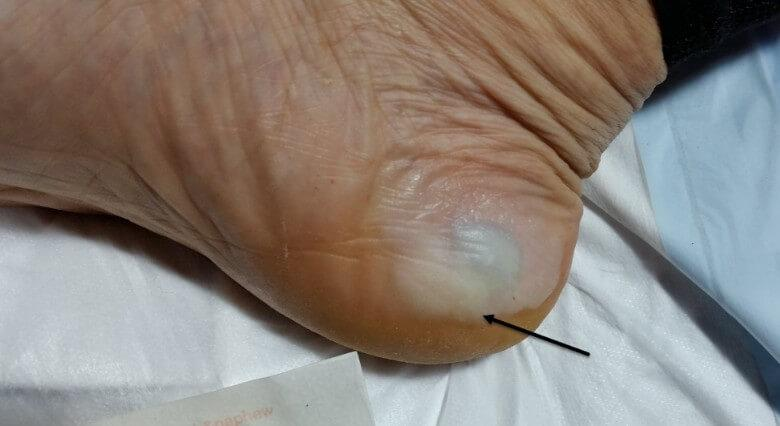 This is a macerated but intact medial heel edge blister which is blood-filled. The reason it is macerated is because the island dressing or Z-Tape was wet and stayed on for too long, a common theme in this race due to the conditions.
