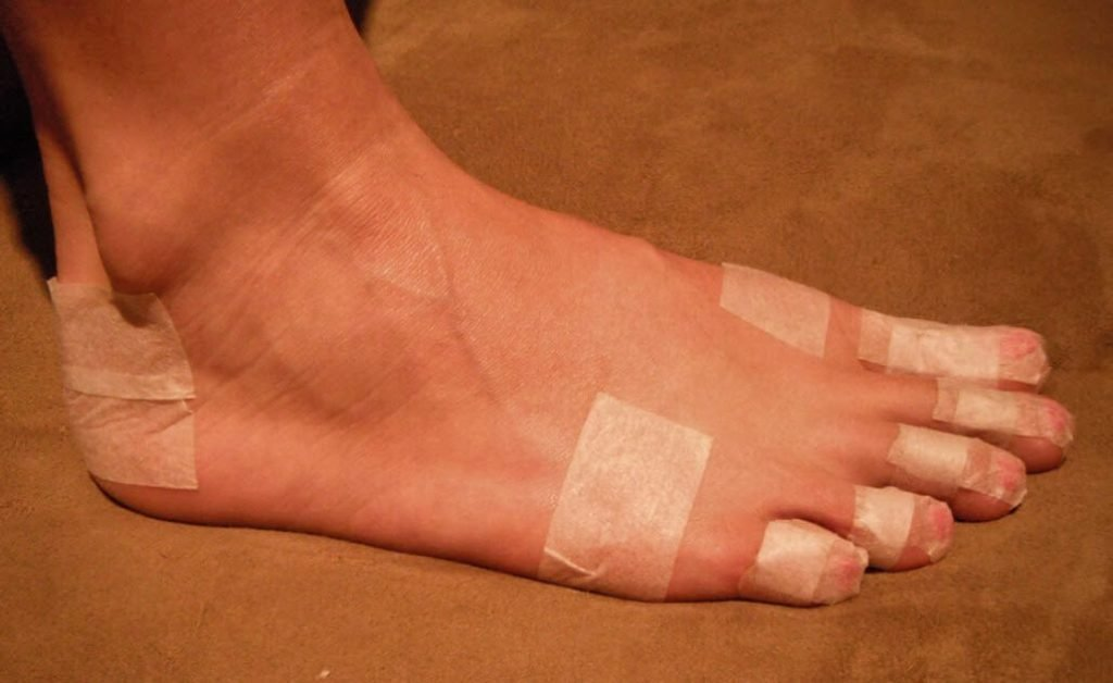 blister pre-taped study: blister prevention taping with paper tape