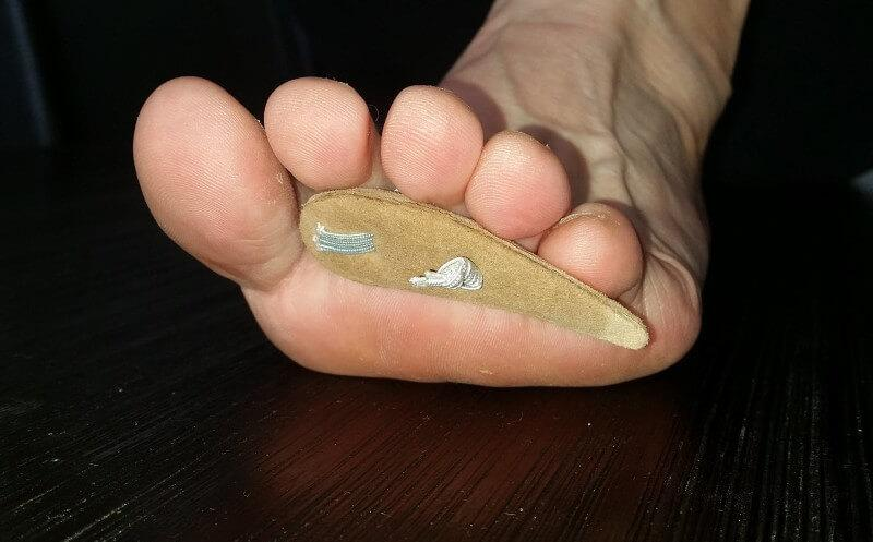 Off-the-shelf toe prop (elastic over the toe to hold it in place).