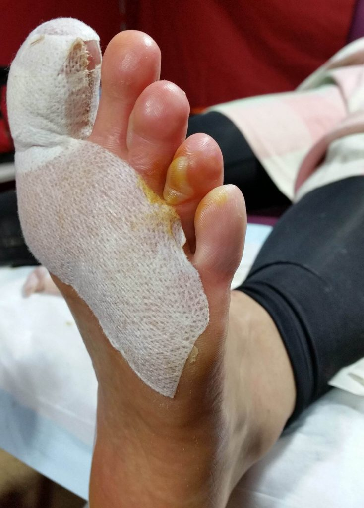 Pinch blister 4th toe that required lancing