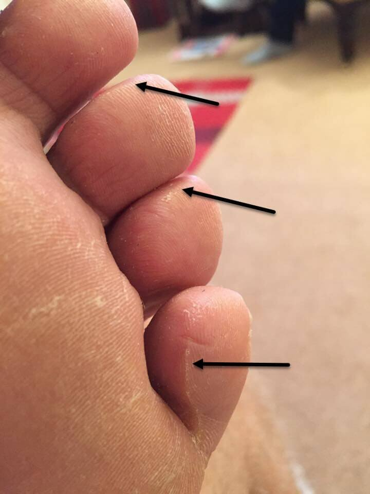 ridged pinch callous likely to blister