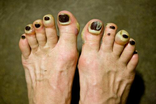 terrible-looking toenail blisters