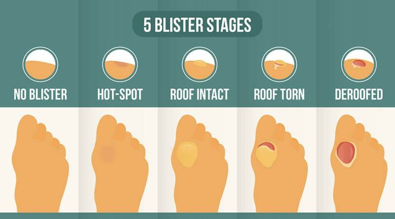 The 5 stages of blister formation