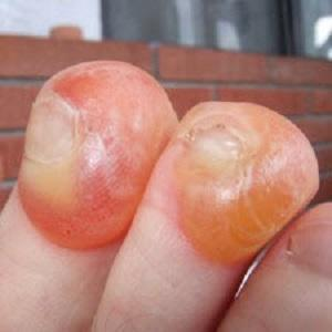 blisters involving the end of the toe