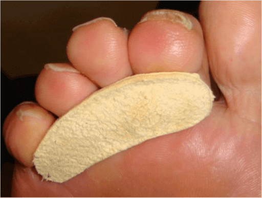 Pre-made toeprop to prevent toenail blisters