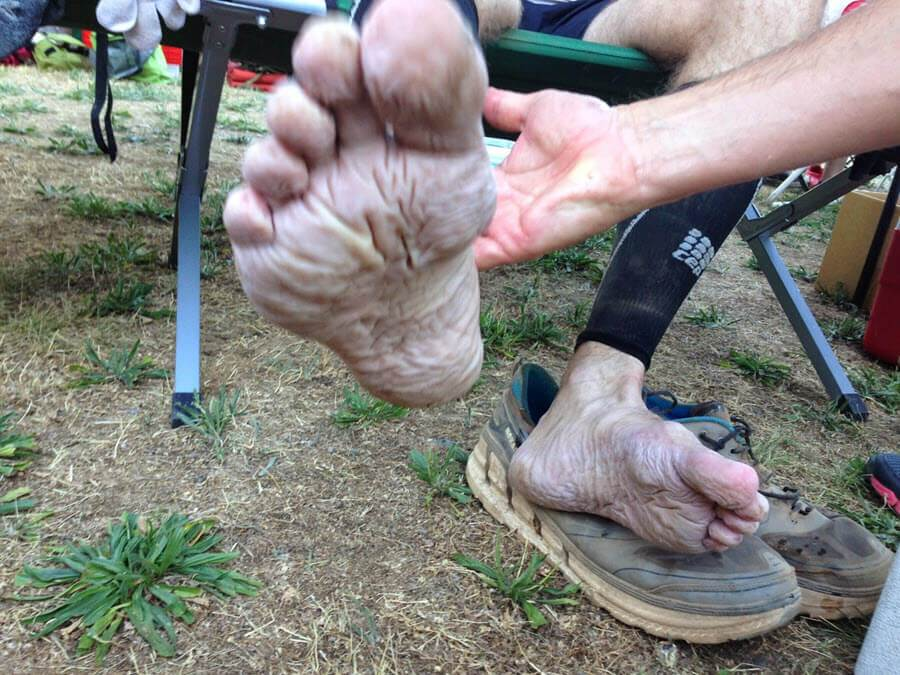 trench foot shite wrinkly macerated skin at ultramarathon John Vonhof