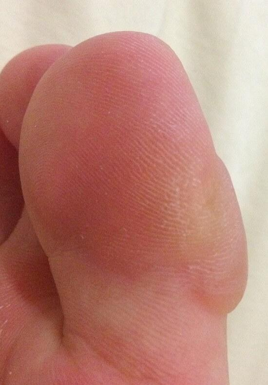 pop toe blister