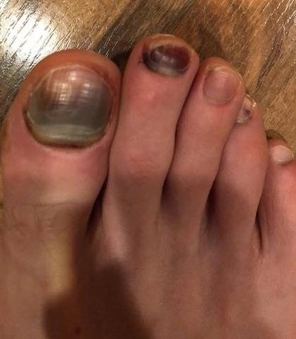 black toenail in a runner
