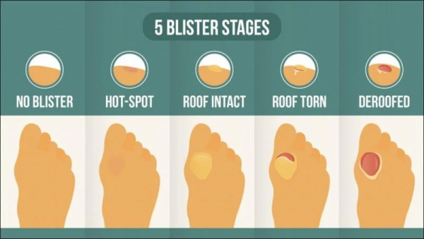 The 5 stages of blister development