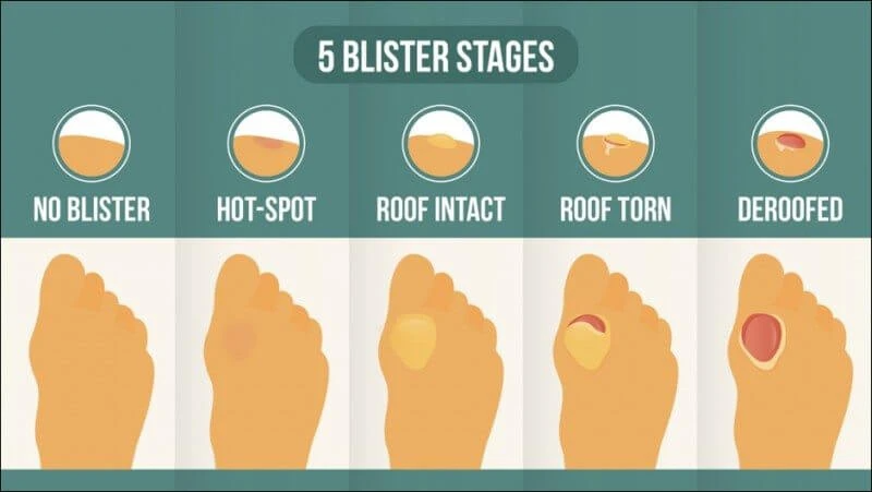 5 stages of blister development