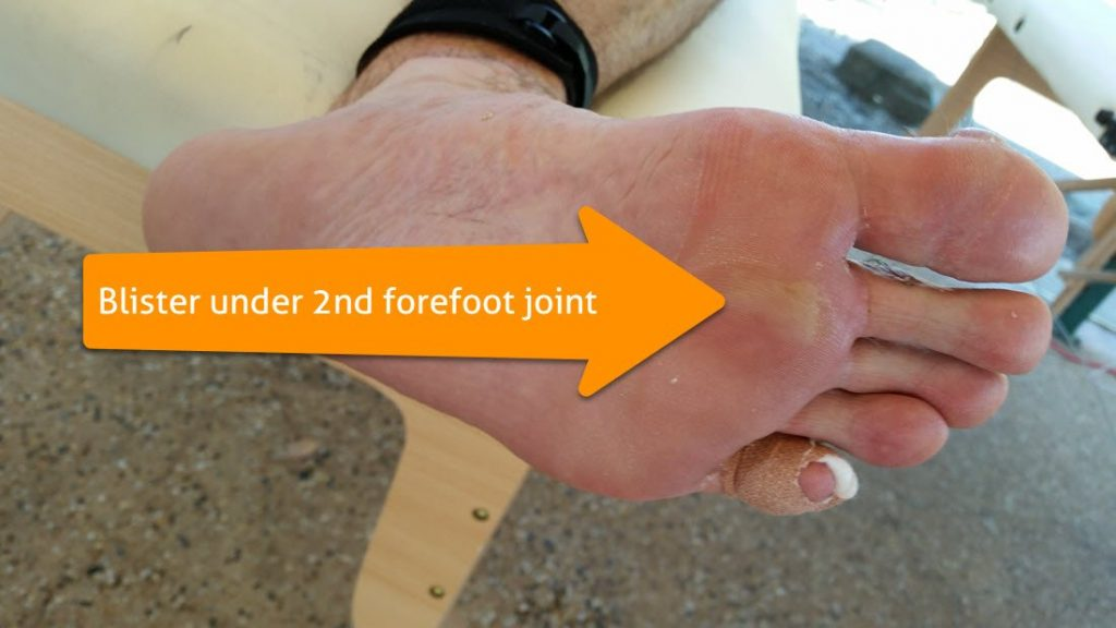 weightbearing blister under second forefoot joint