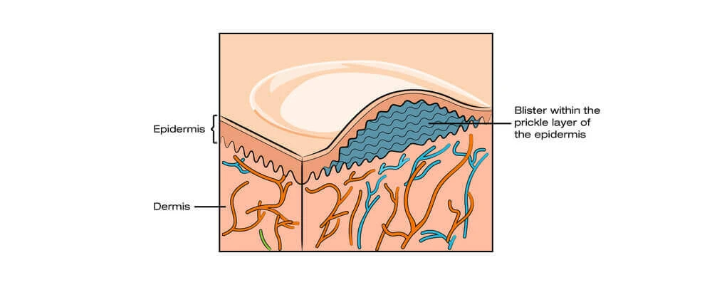 skin structure and blisters