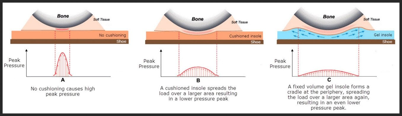 how cushioning reduces pressure