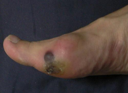 blood blister edge of forefoot