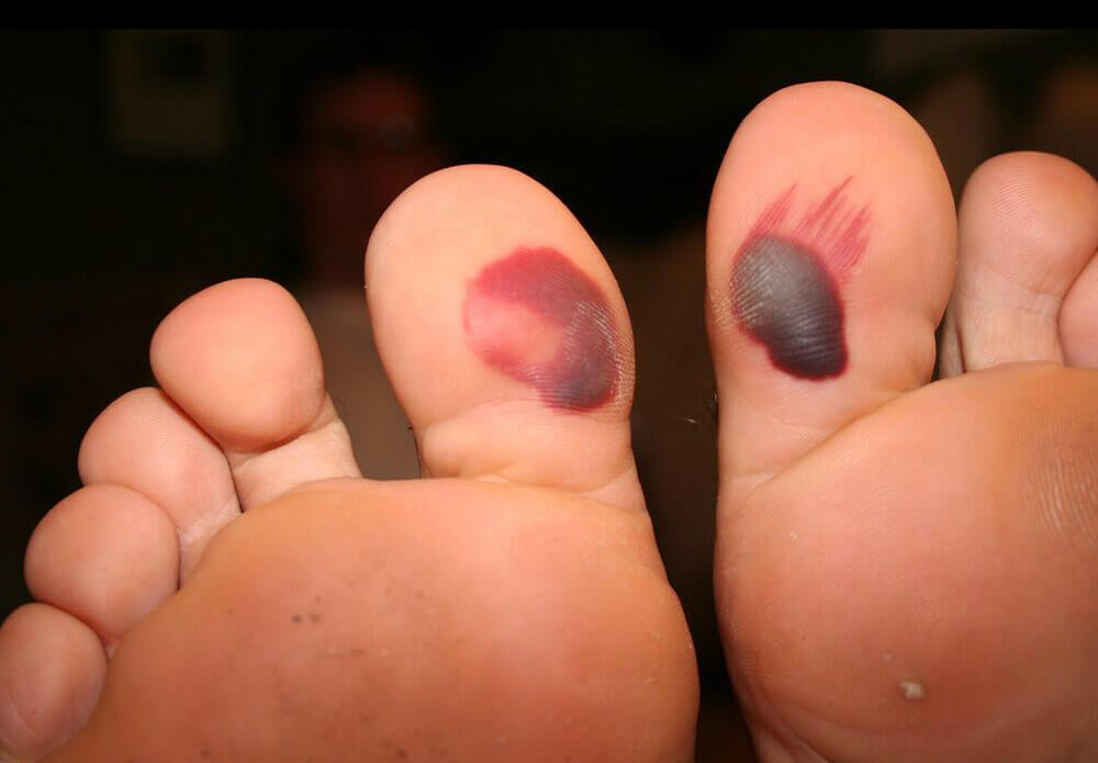 blood blisters under the big toe