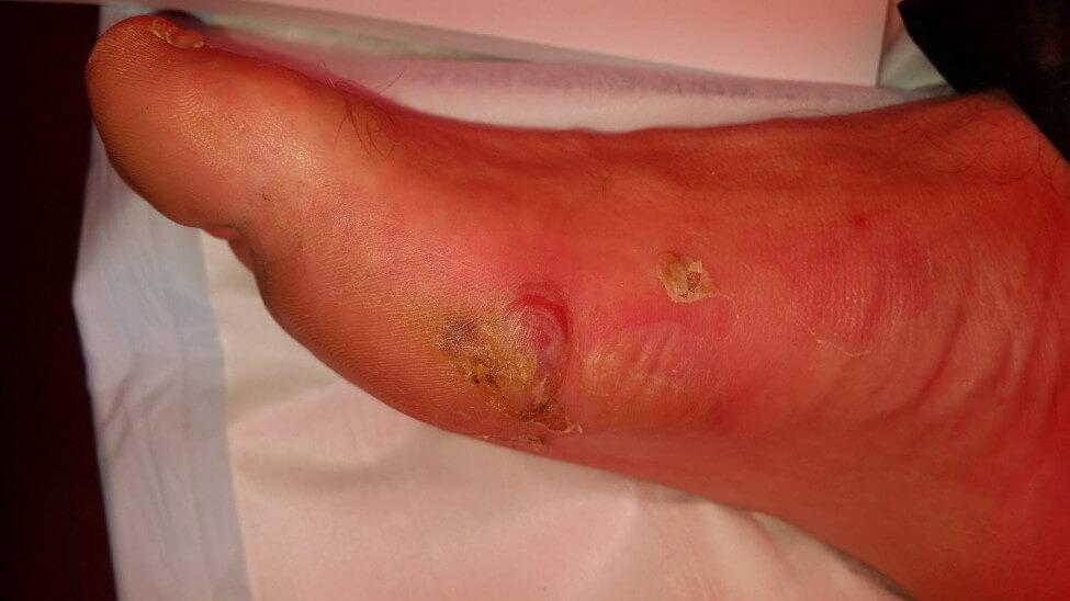 one of the hree most common blisters we saw at Big Red Run