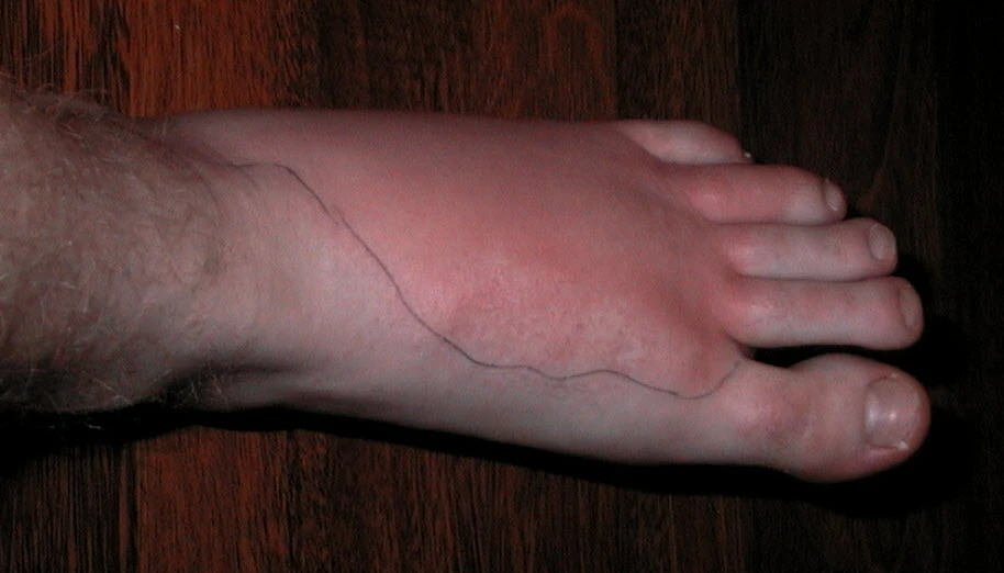 An infected blister can lead to cellulitis