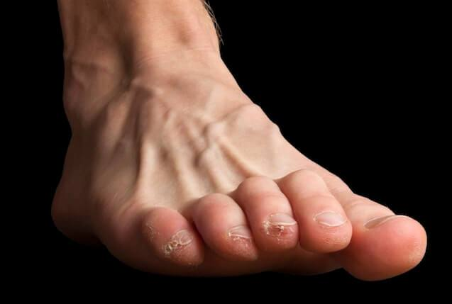 clawed toes and blisters