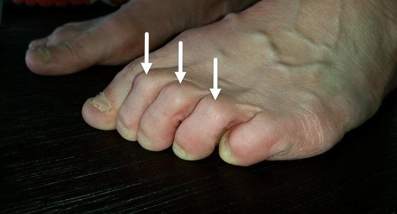 clawed toes blister top of toes