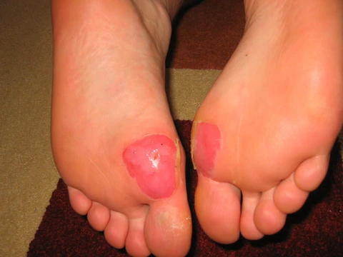 deroofed blisters showing depth of a blister