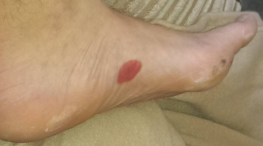 arch blister from new running shoes
