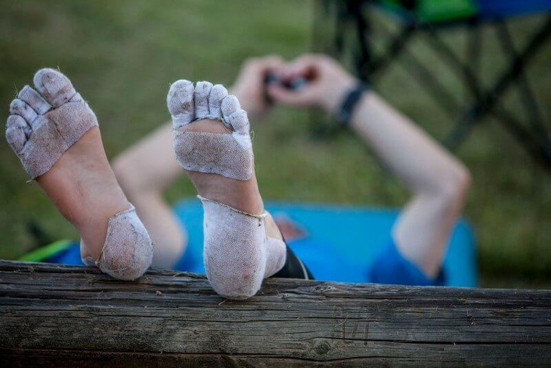 take pressure off a foot blister by reducing swelling