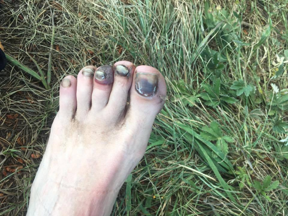 black toenail and toenail blood blister