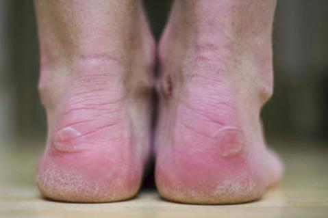 back of heel blisters