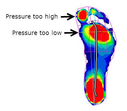 High pressure under the big toe (not under the MPJ) due to a functional hallux limitus (inefficient windlass mechanism)