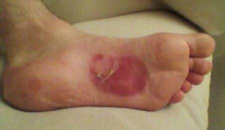 arch blisters from orthotics