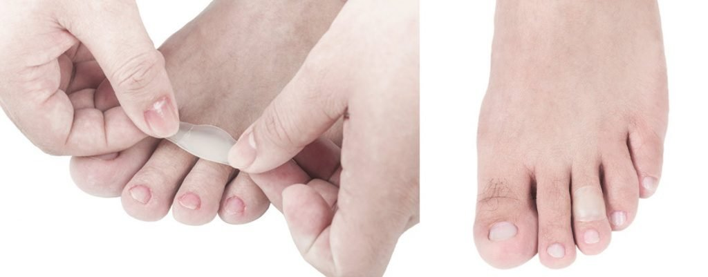 foot blister treatment for deroofed blisters