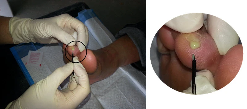 Infected blister with pus - don't forget foot blister treatment involves the use of antiseptics